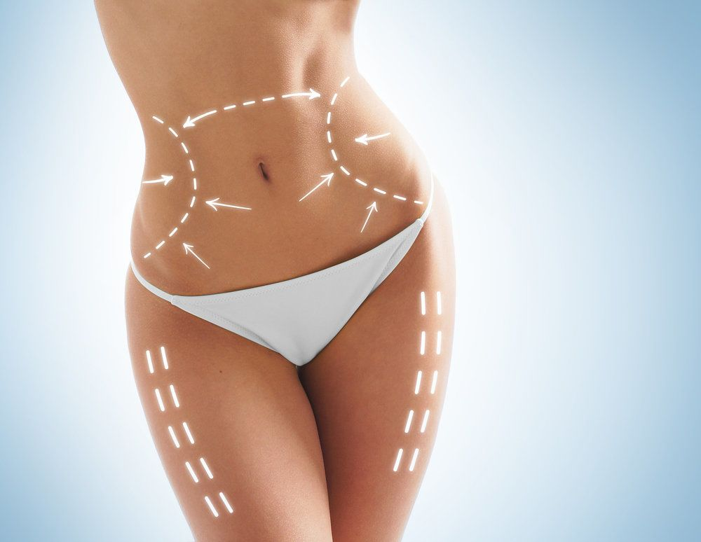 Woman in white underwear with illustration marks showing the effects of liposuction.
