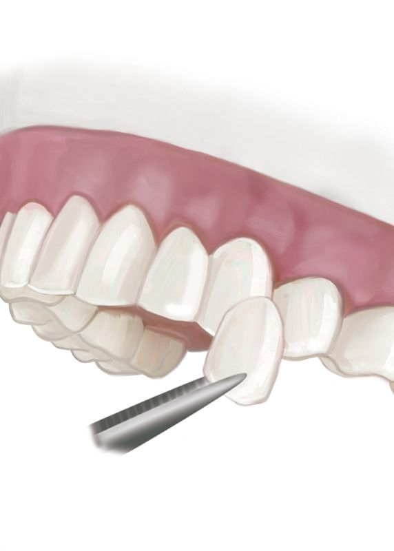 An illustration of a porcelain veneer being placed on a tooth