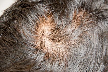 Close up of man's scalp