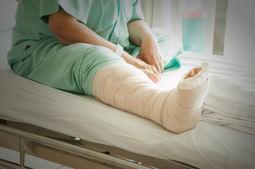 A person with a broken leg sitting in a hospital bed
