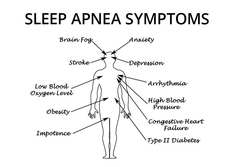 Illustration of sleep apnea symptoms