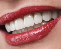 A close-up of a woman's white teeth and red lipstick