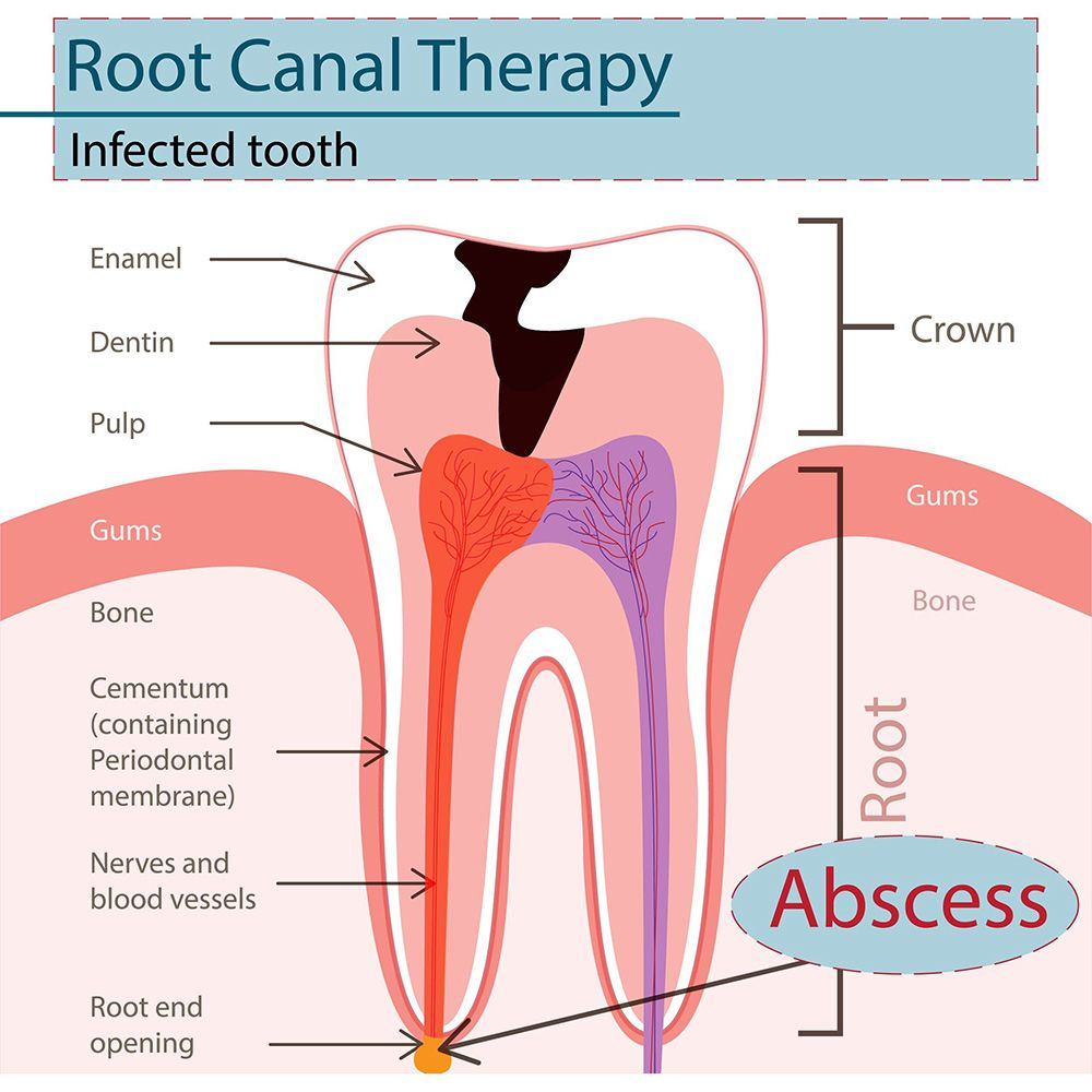 Root canal infection treatment (endodontic therapy)