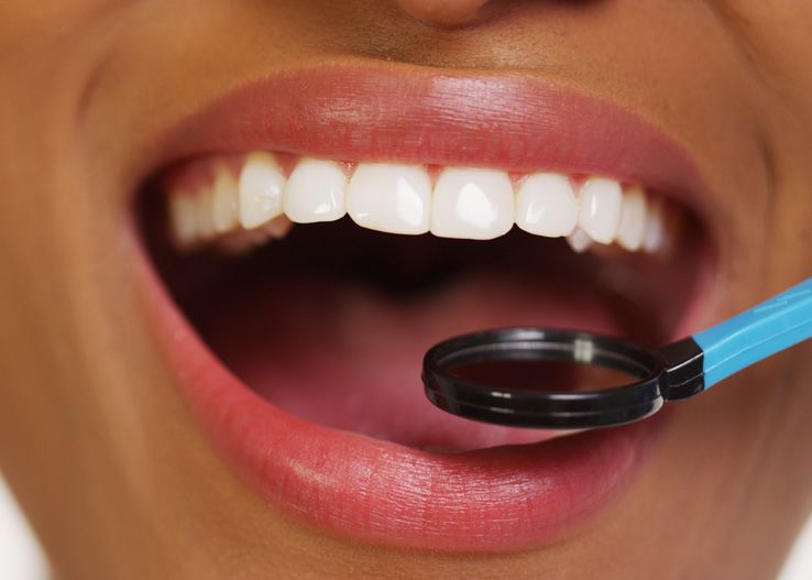 A patient's mouth being examined by the dentist