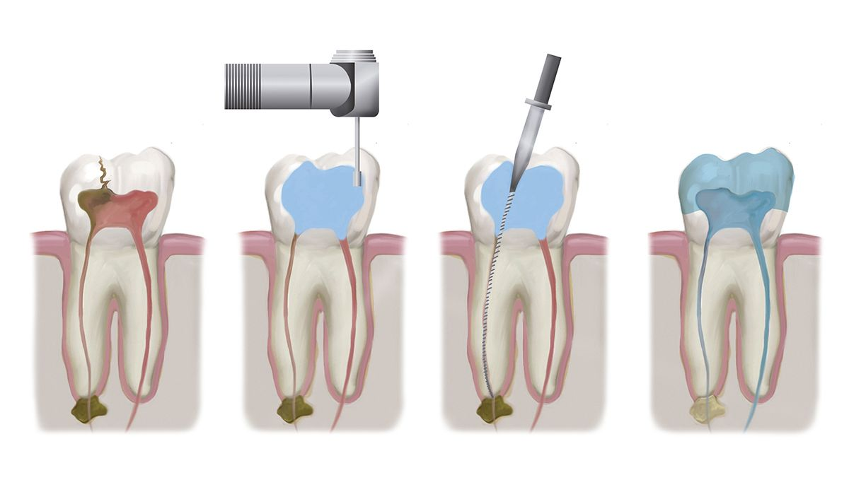 Illustration depicting steps of root canal treatment