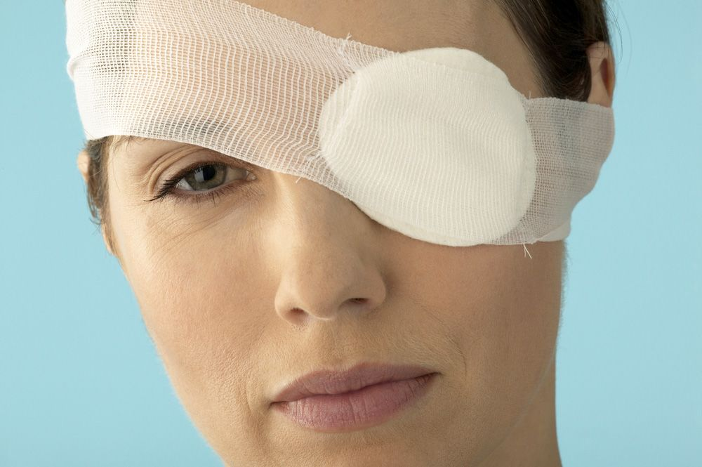 A woman with an eye injury