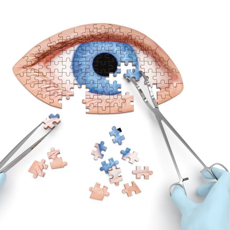 An illustration of surgical instruments being used to piece together a jigsaw puzzle of an eye