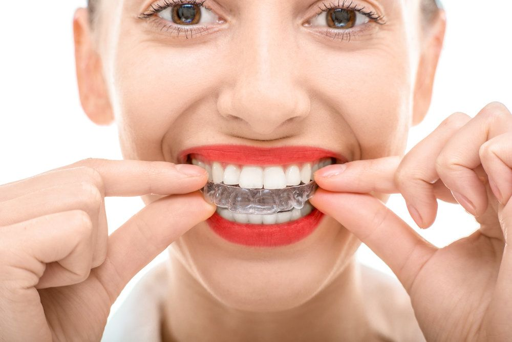 A female dental patient trying on her Invisalign® aligner