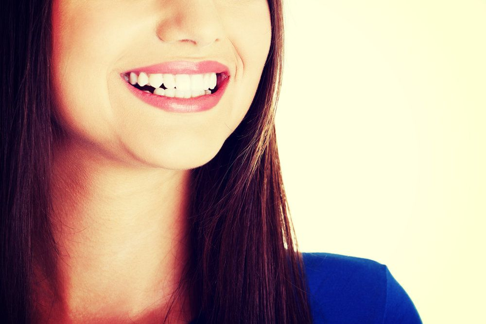 A bright, healthy smile, thanks to retainers only treatment