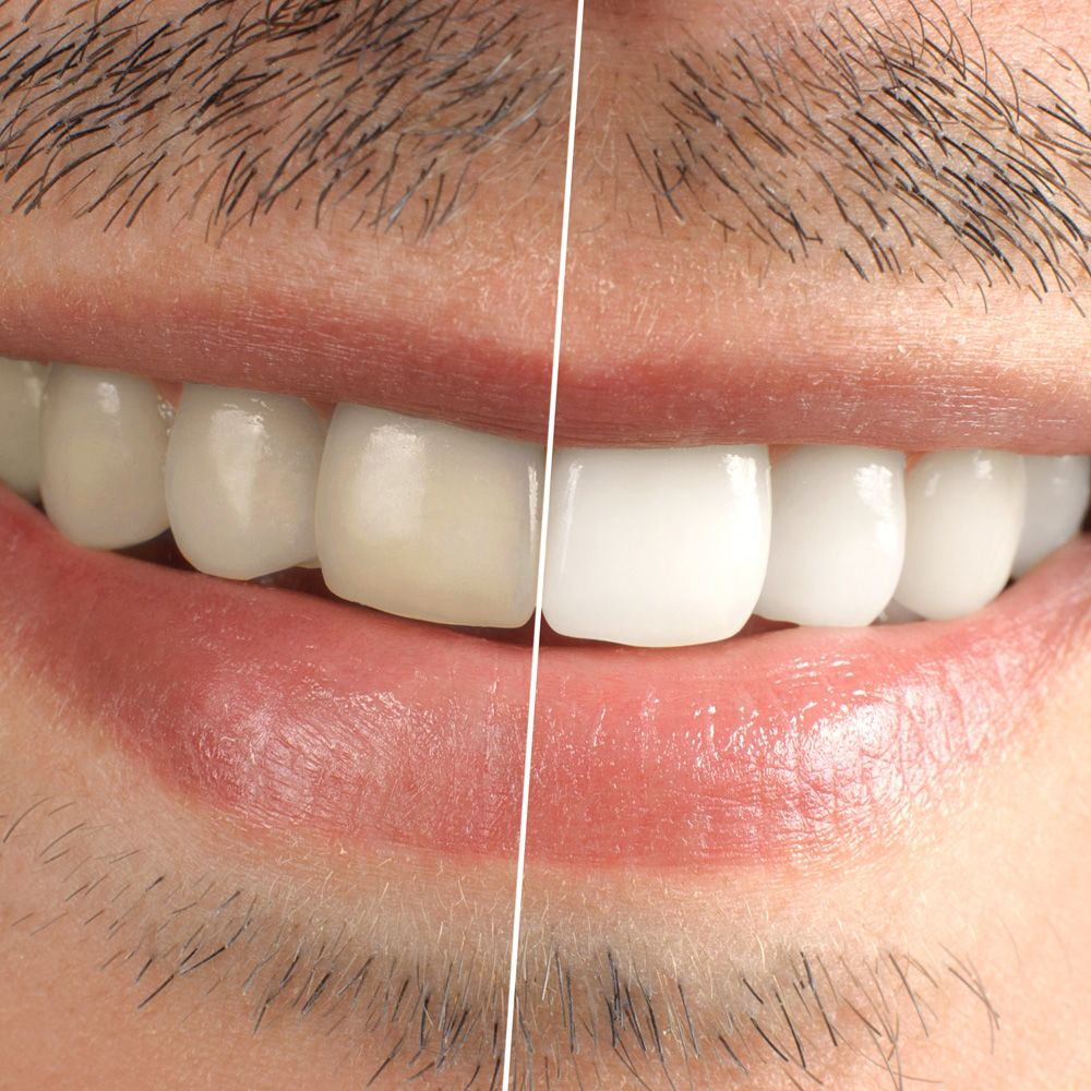 Before-and-after contrast of the smile of a patient who underwent teeth whitening