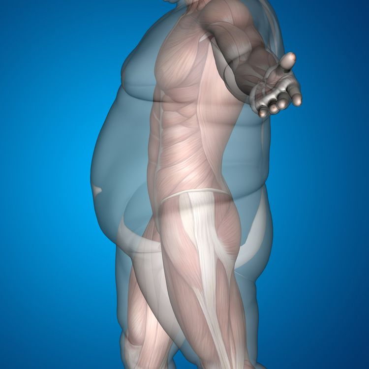 Excess body mass in an obese person