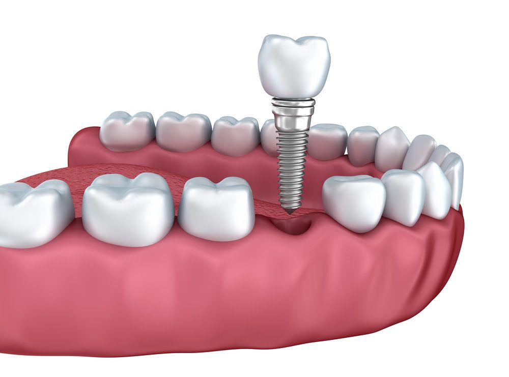 Illustration of dental implant with crown being placed in jaw
