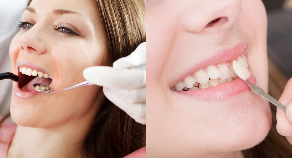 Two-panel photo of woman having dental examination