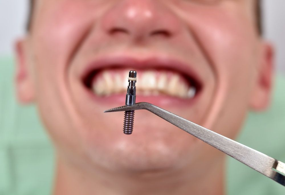 A dental implant being held with dental tweezers with a man in the background preparing to open his mouth