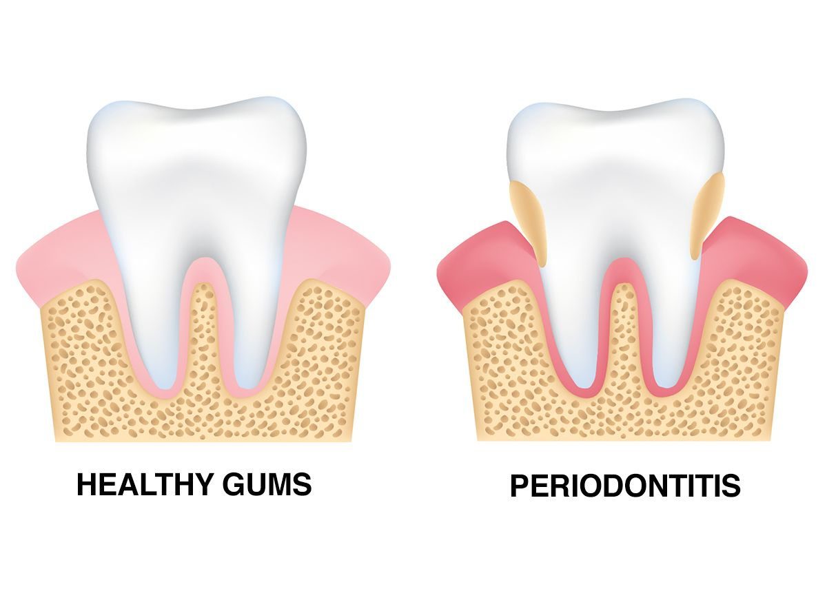 An illustration of a healthy tooth and one affected by gum disease