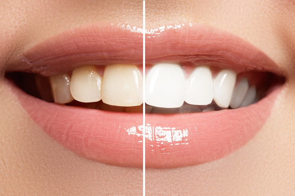 A side-by-side comparison of discolored teeth and whitened teeth