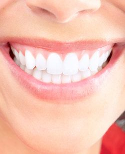 Bloomington Tooth Erosion Treatment