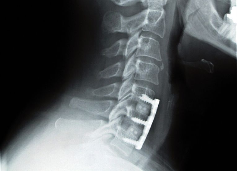 X-ray of a patient with screws and a rod along the spine