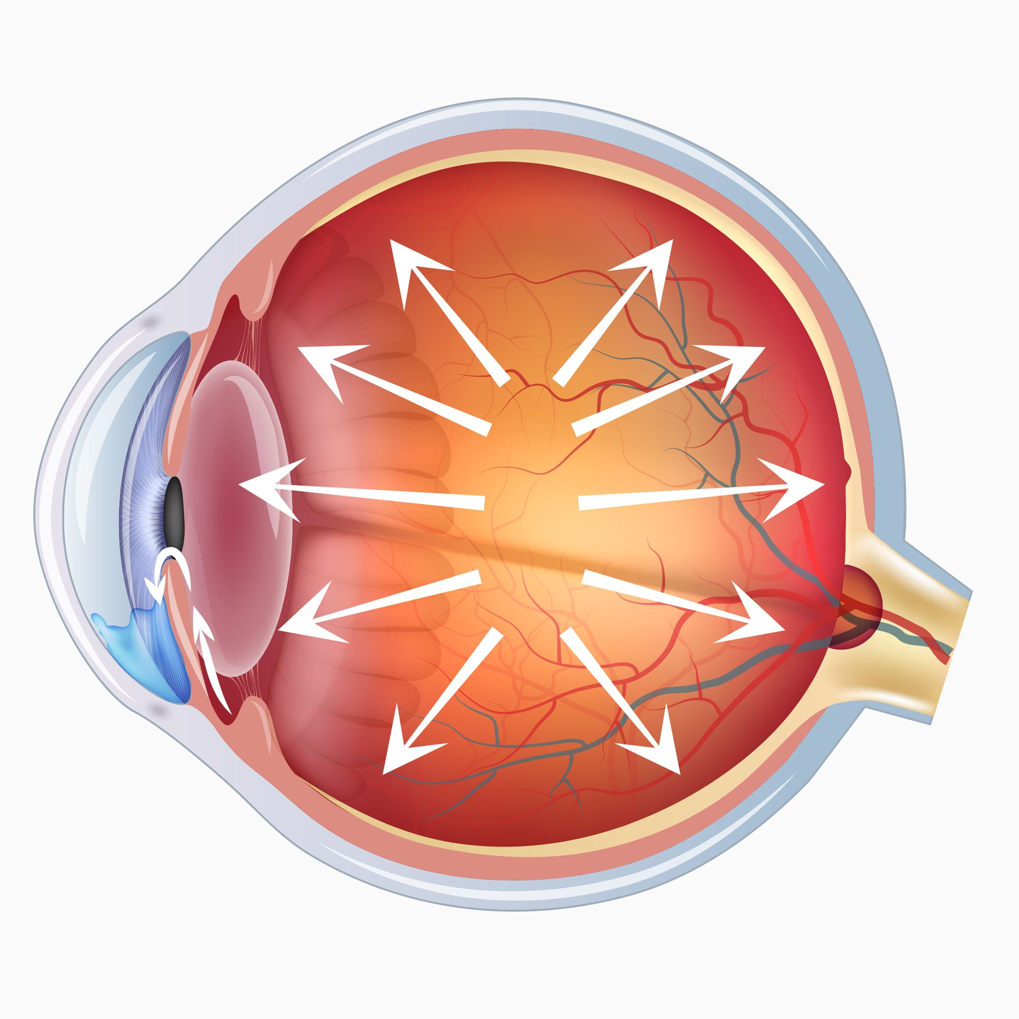 Illustration of an eye affected by glaucoma