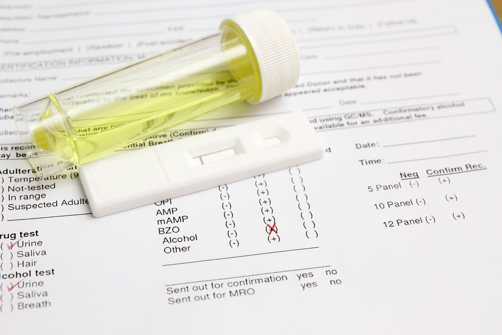 A urine test sample for BAC and DUI arrests