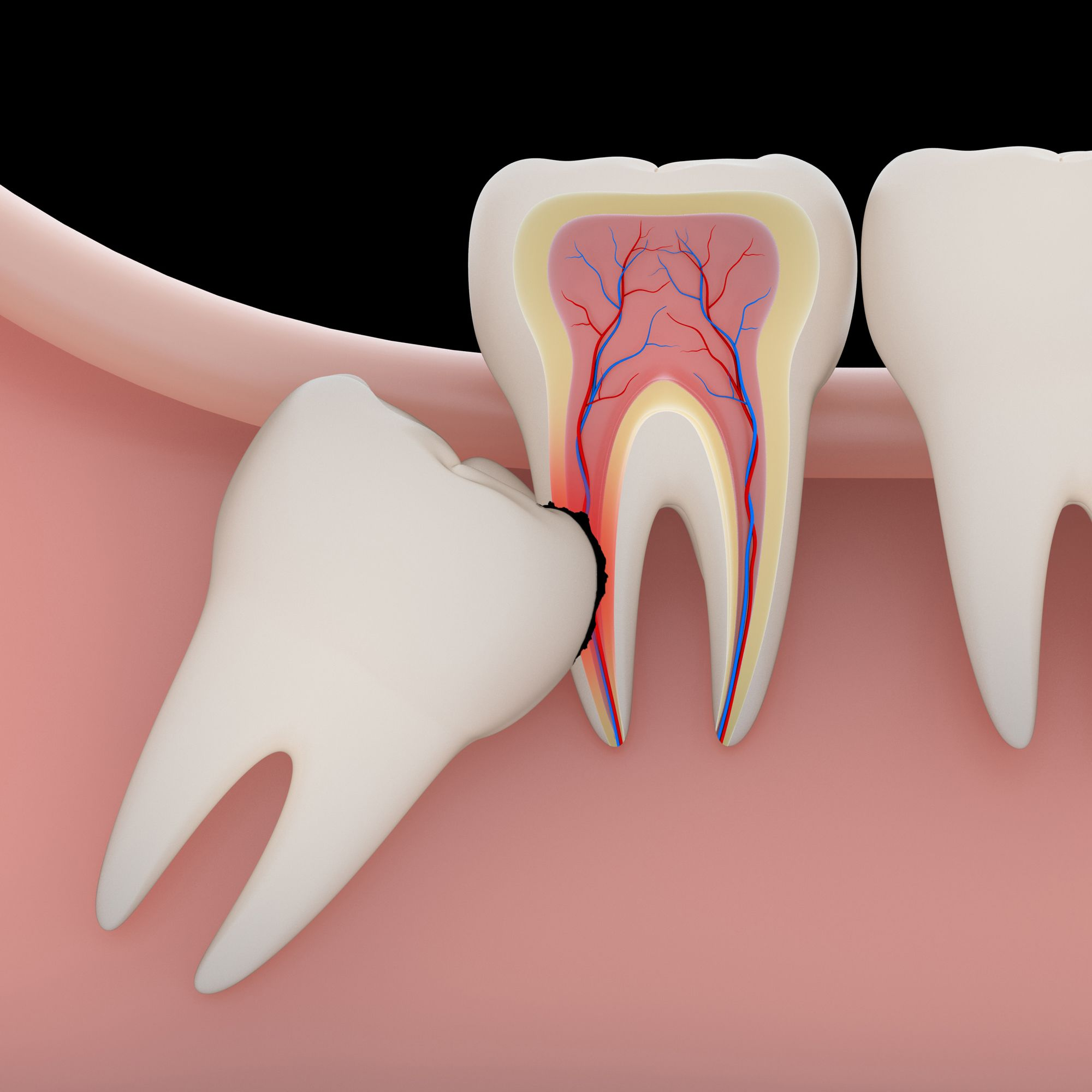 Illustration of a tooth growing into another tooth