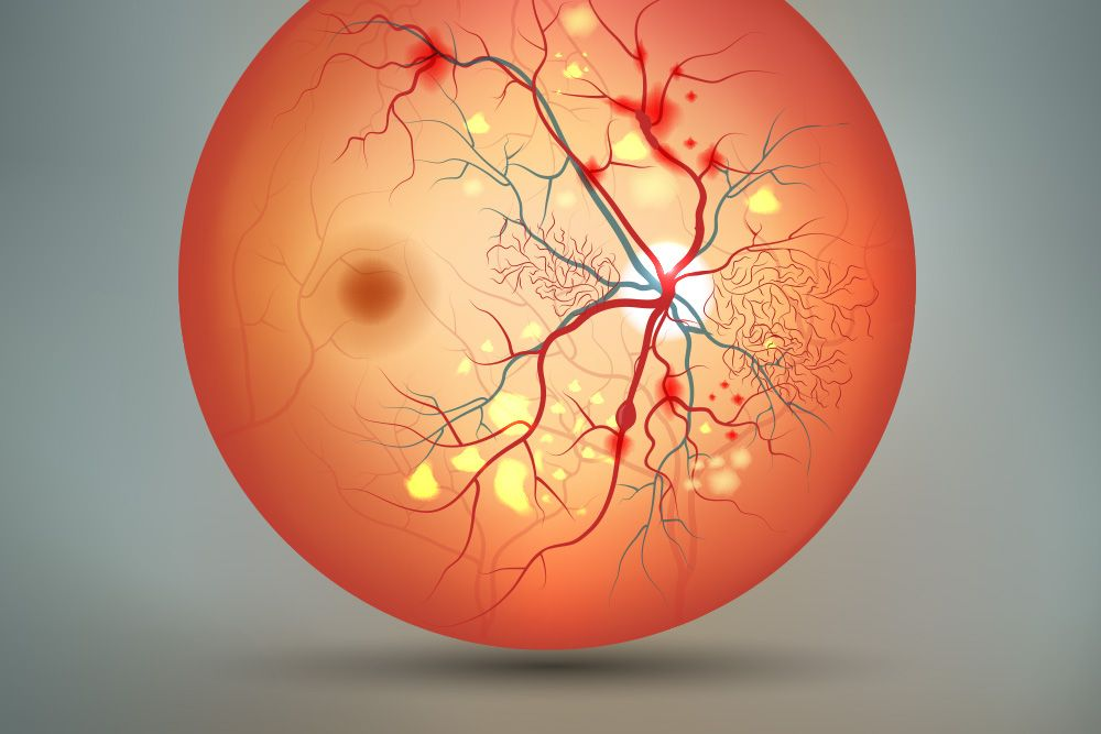 An illustration of a retina with diabetic retinopathy