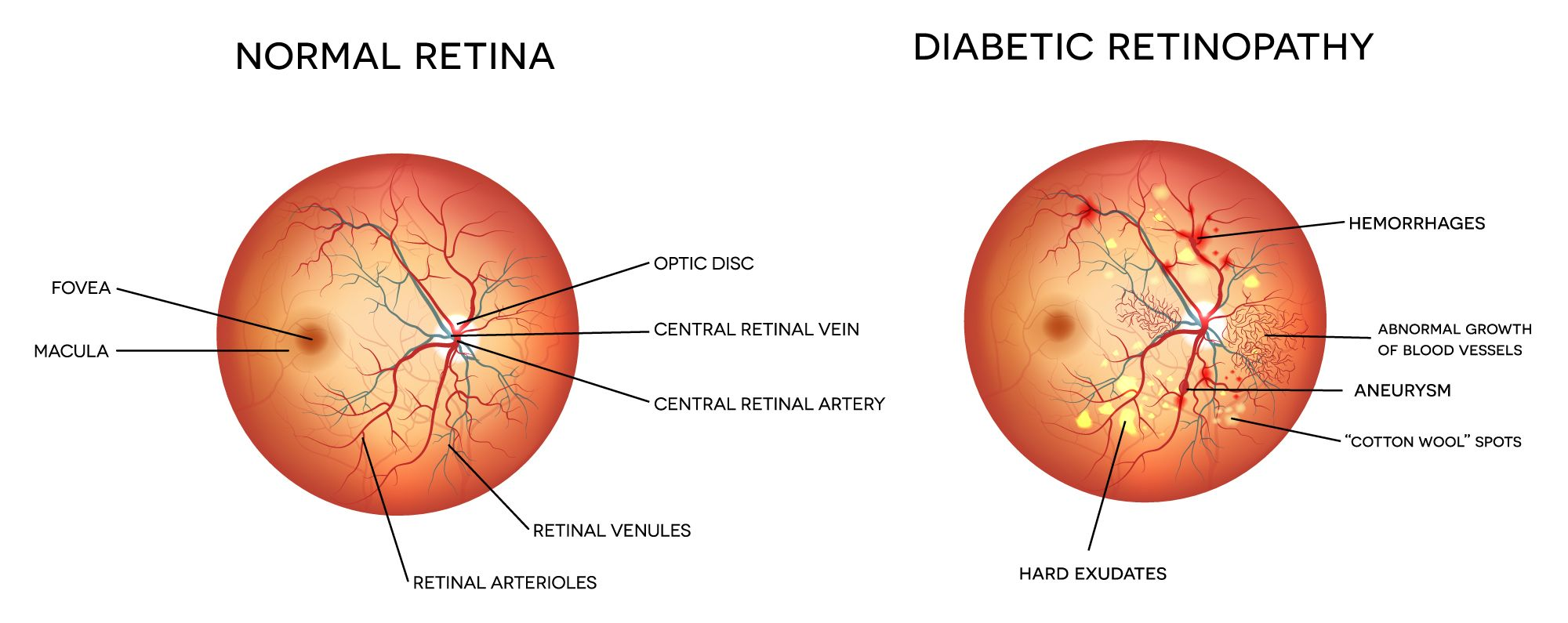 An illustration of a normal retina next to a diabetic retina