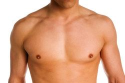 Male Breast Reduction in Little Rock,AR is one of the more common and other Male Cosmetic Surgery or Cosmetic Surgery for Men procedures offered by Dr. Devlin.