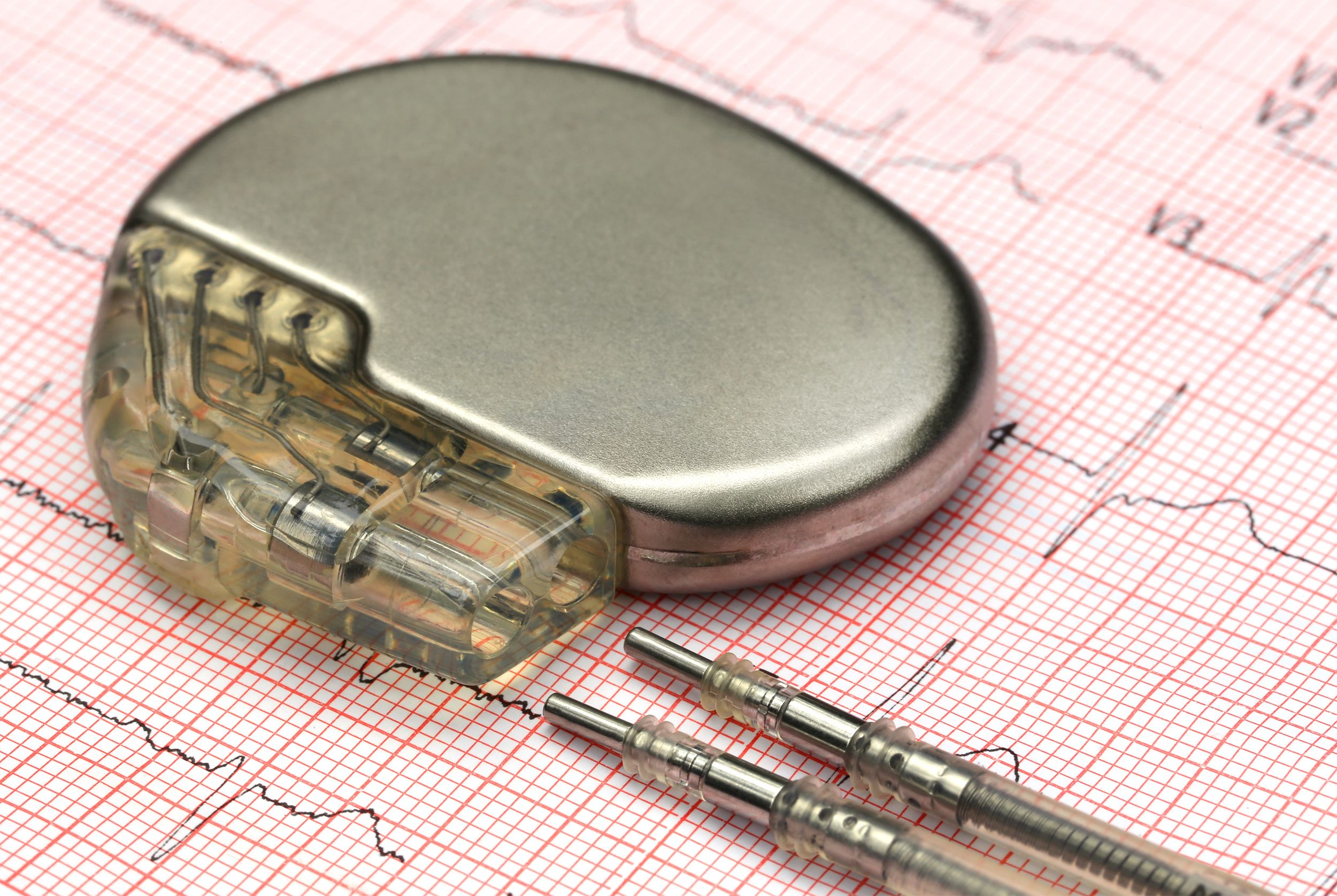 A pacemaker