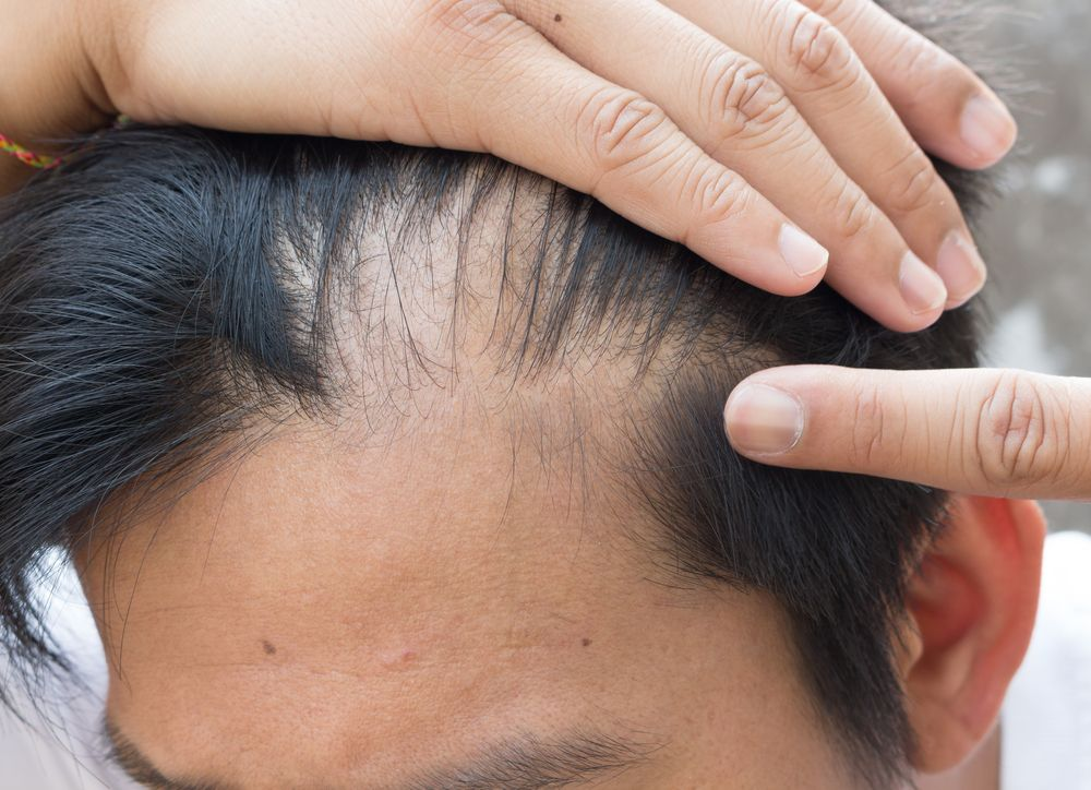 Man pointing to bald spot on his head
