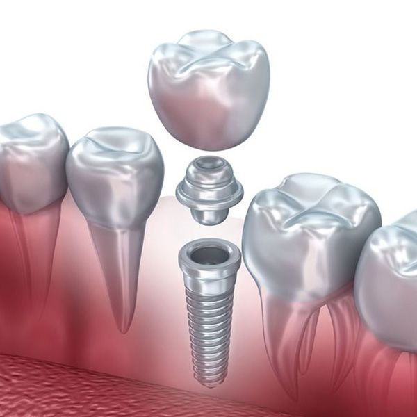 Illustration of a dental crown supported by a dental implant