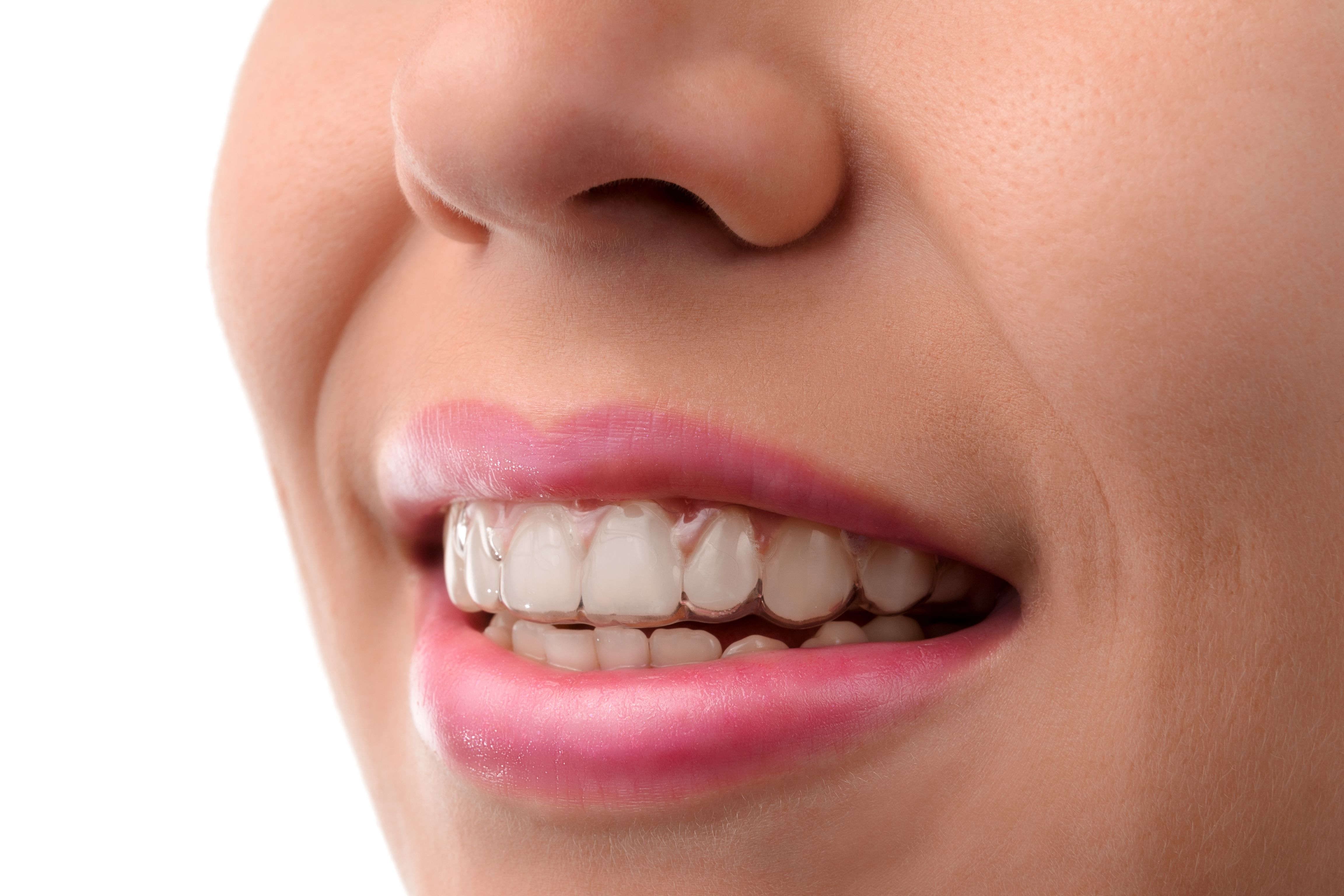 Woman wearing a clear Invisalign® aligner.