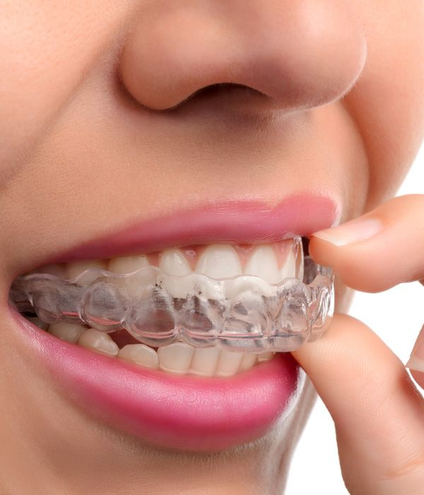 A woman with an Invisalign® tray