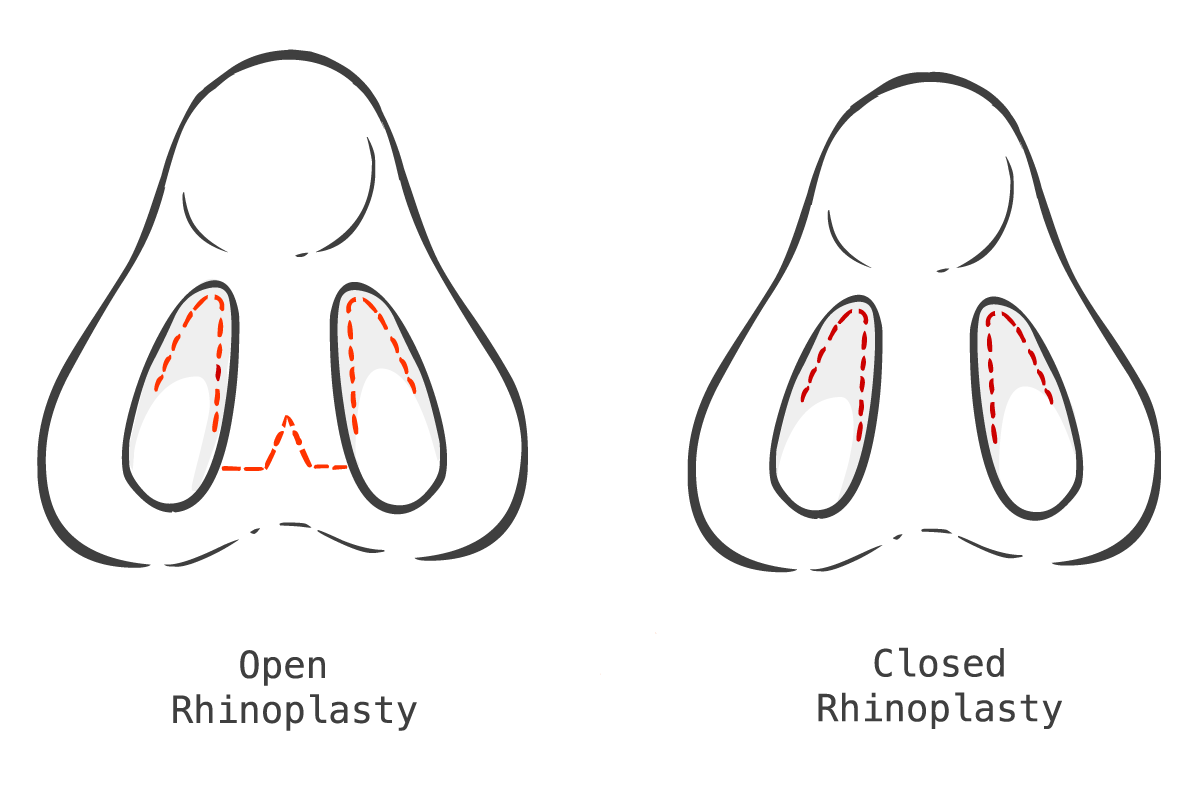 Illustration of open rhinoplasty vs. closed rhinoplasty