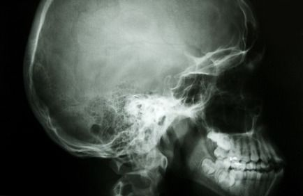 The X-ray of a human head.