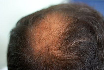 Close up of man's thinning hair and bald spot