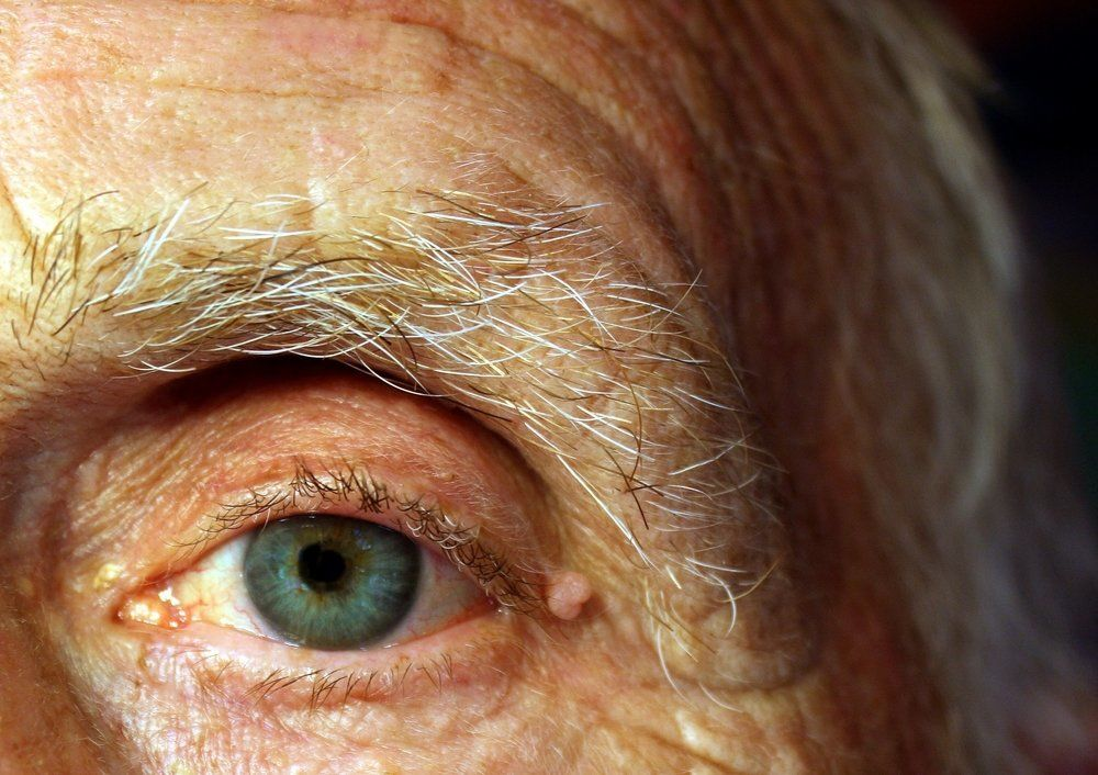 Close-up of the eye of a patient after cataract surgery