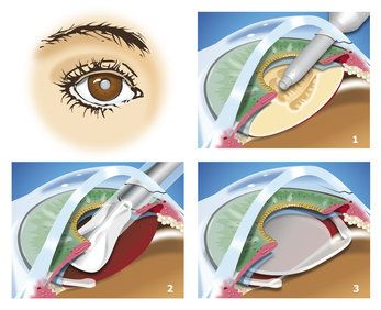 A cartoon-like graphic showing the four steps of cataract surgery.