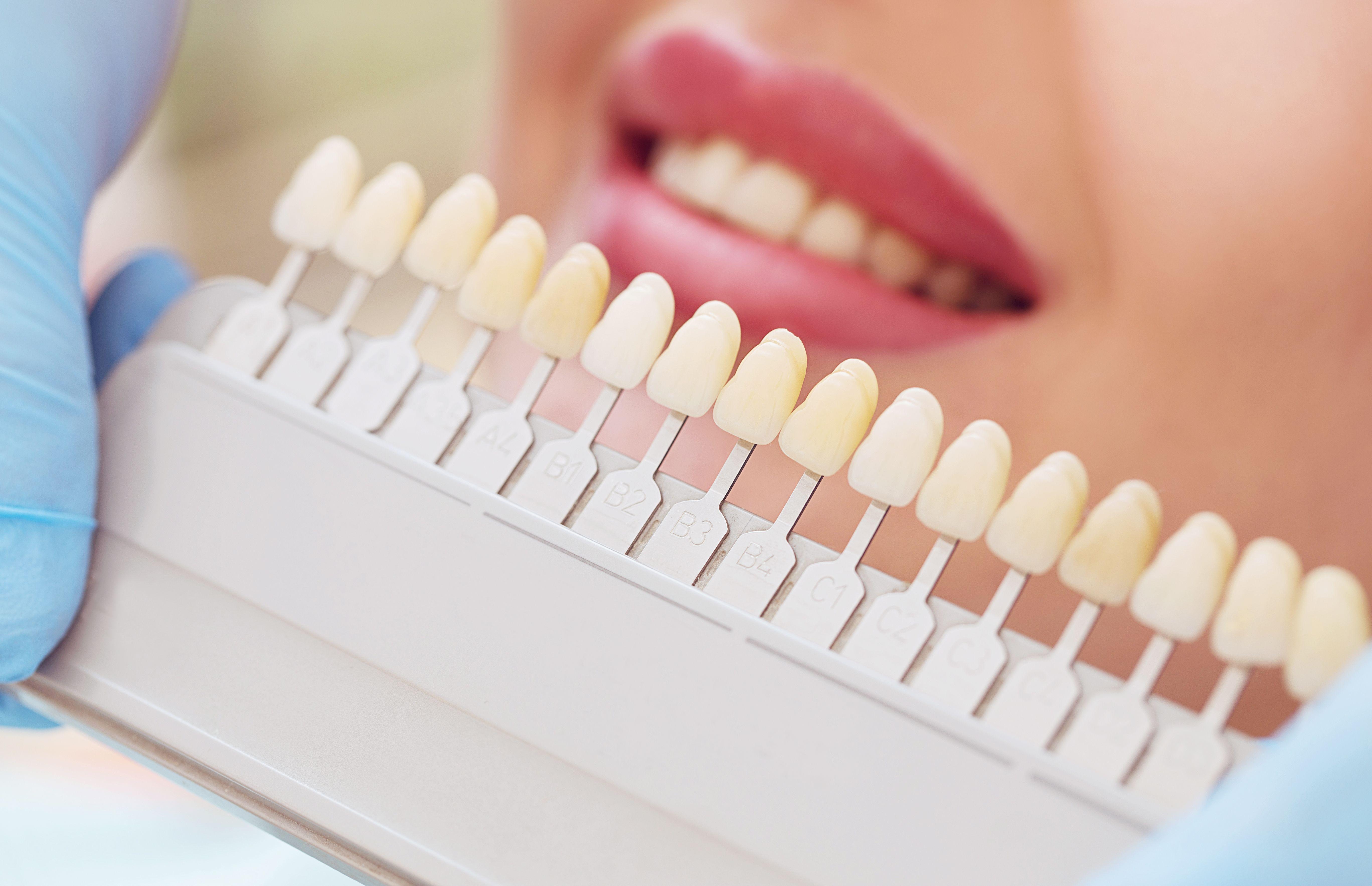 Teeth Whitening Cost Houston Tx Uptown
