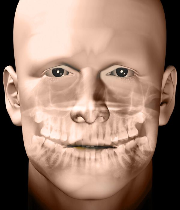 An overlay of the jaw structures and the face