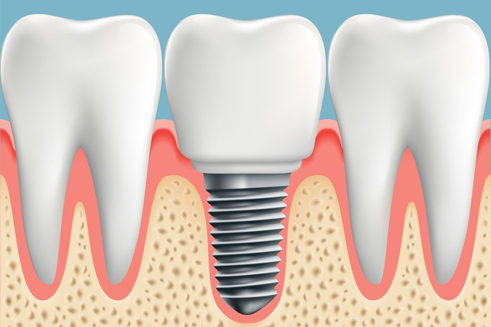 Dental implant for single tooth replacement