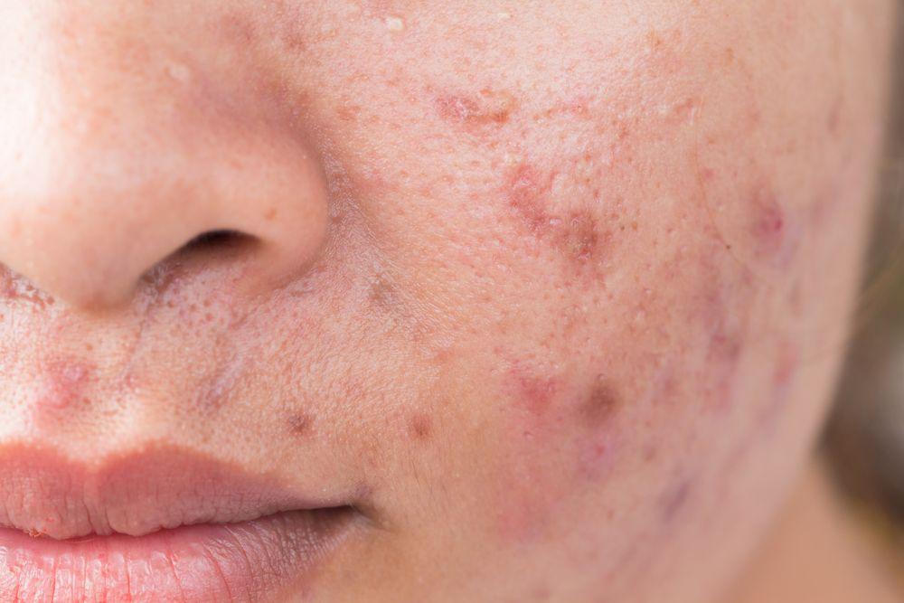 up close photograph of skin with acne