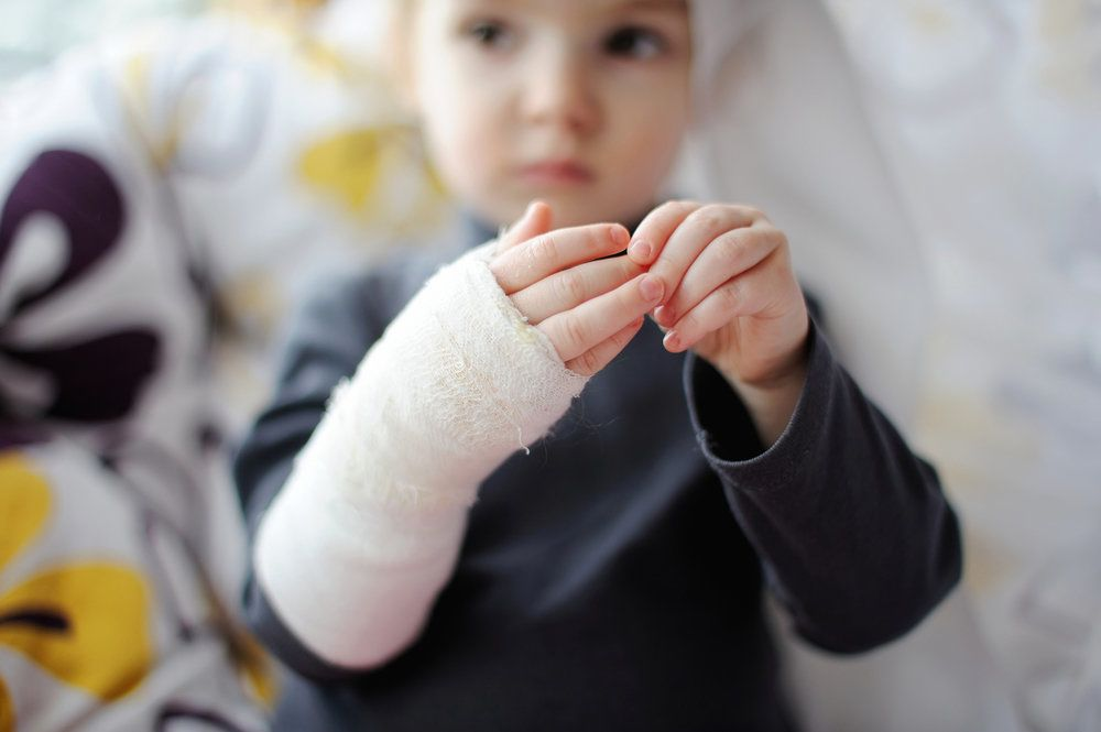 child in a cast