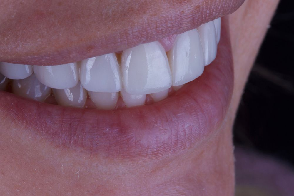 Straight teeth after treatment for overlapping teeth