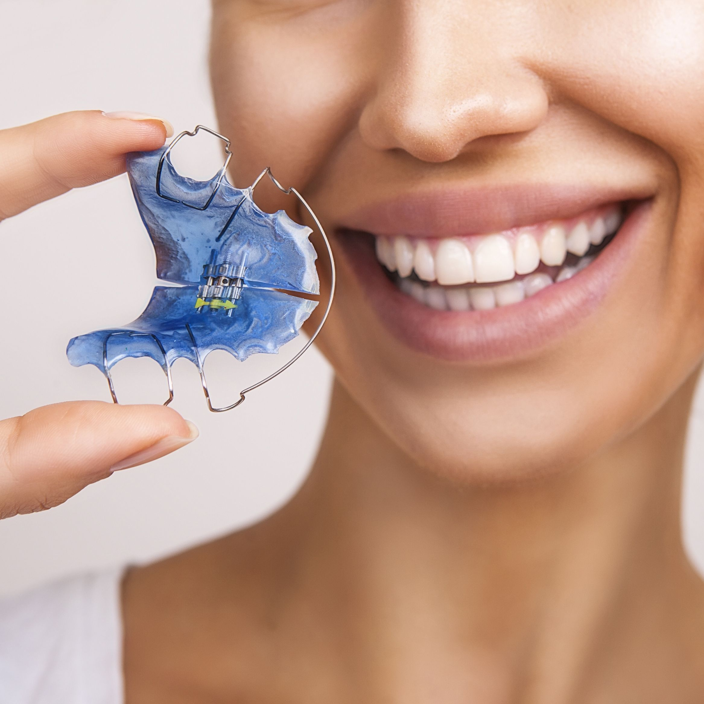 Female patient holding blue orthodontic retainer