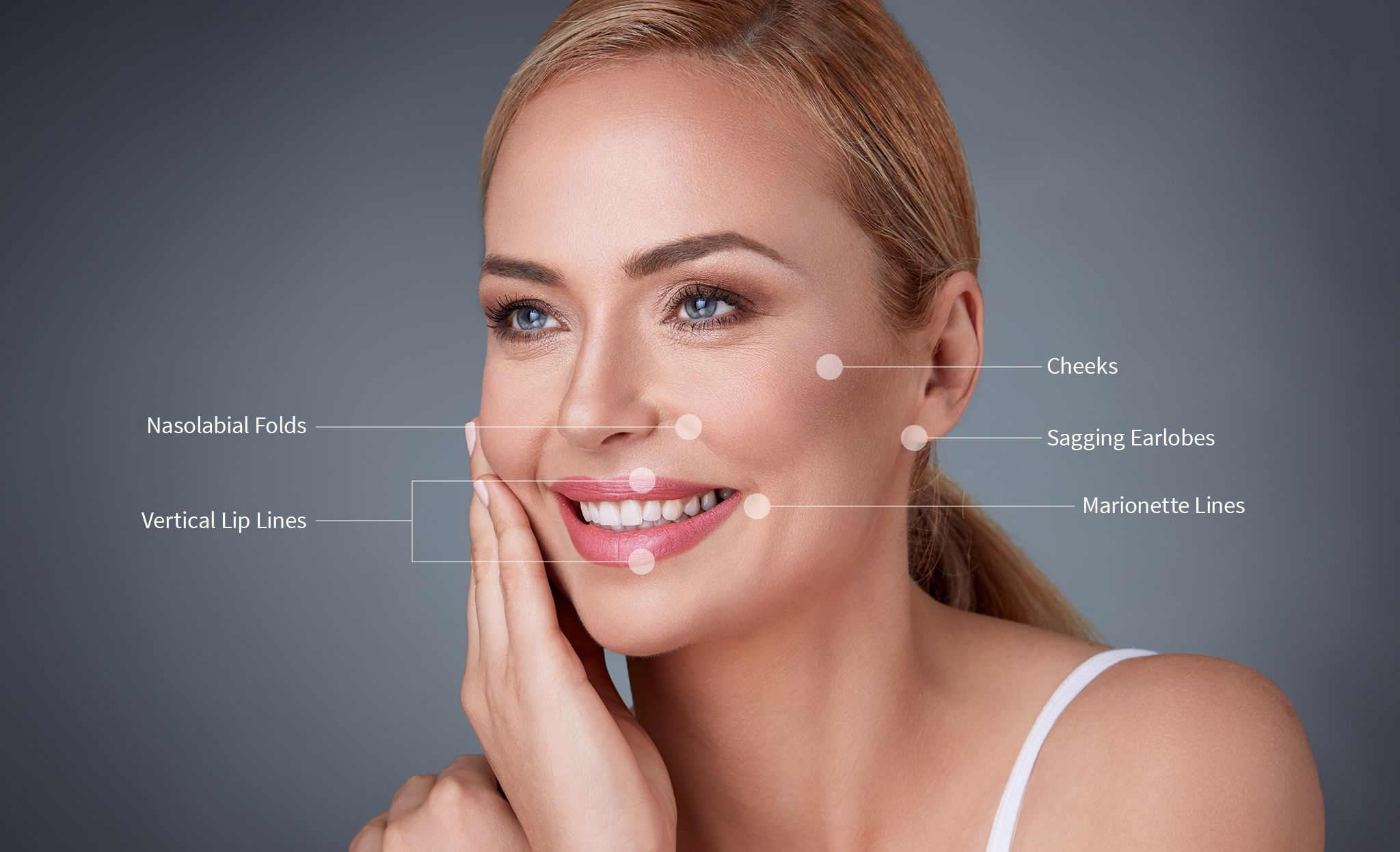 Woman smiling while tags identify where wrinkles occur on the face
