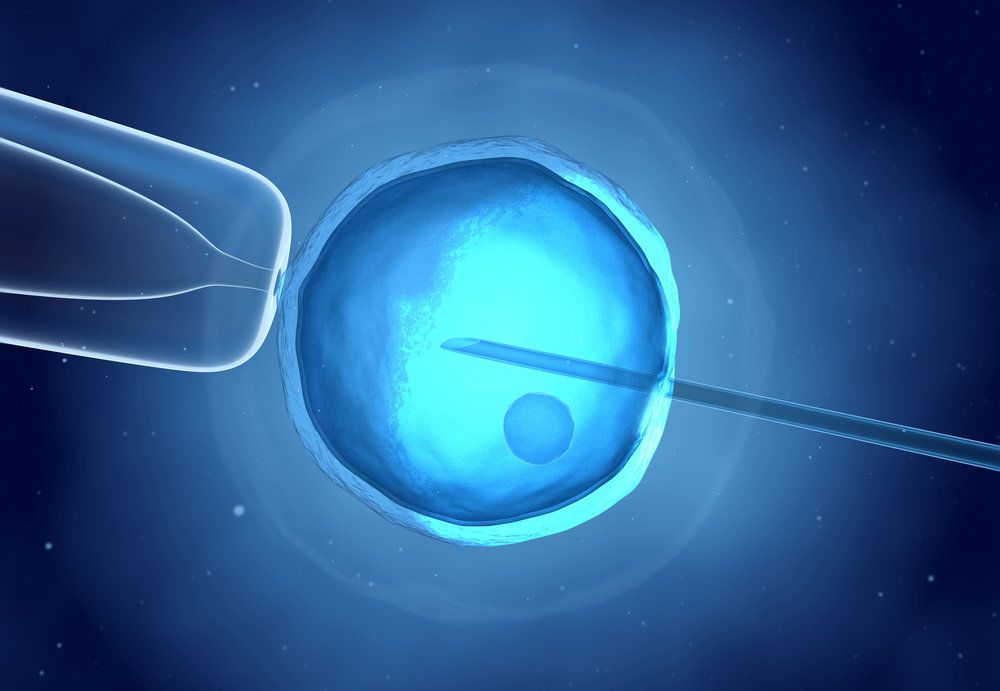ivf illustration