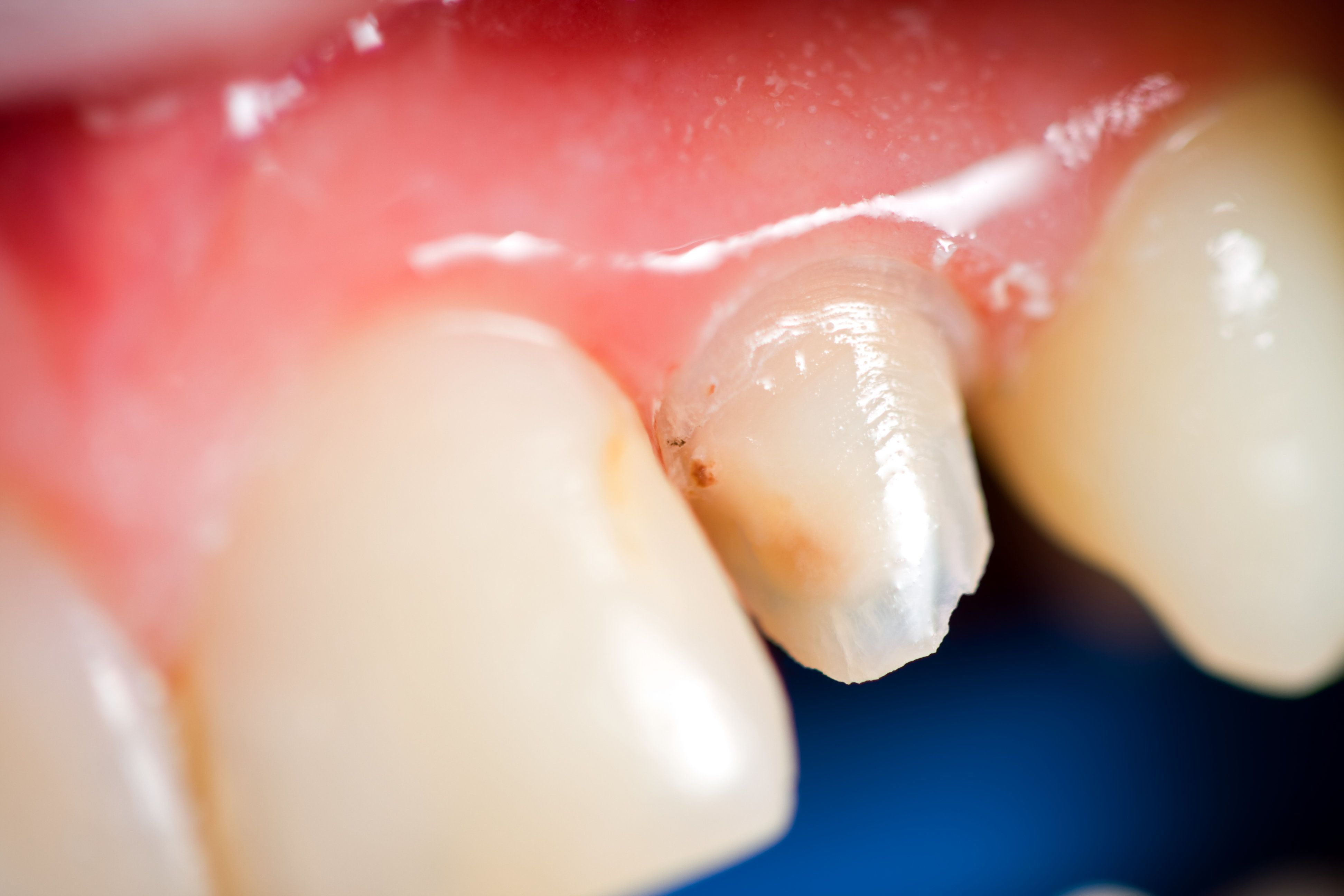 Photo of a damaged tooth
