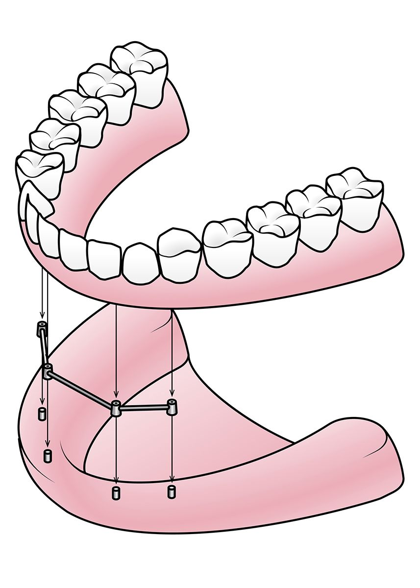 Dental implants being used to anchor a full set of dentures