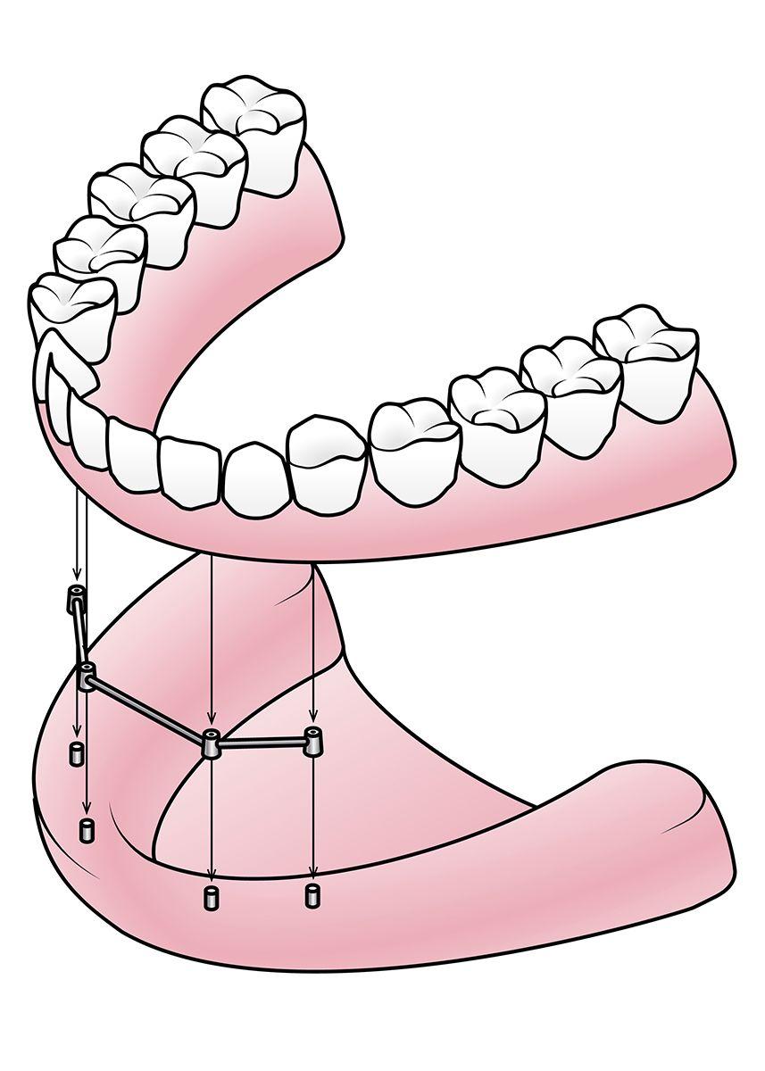 Image of dentures being secured to dental implants